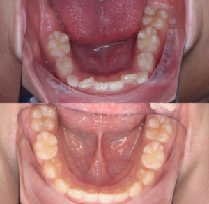 つくば研究学園矯正歯科クリニック case3