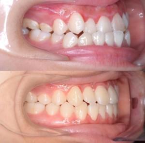 つくば研究学園矯正歯科クリニック case5