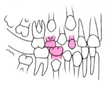 矯正治療例9-11歳 つくば研究学園矯正歯科クリニック