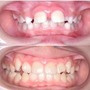 つくば研究学園矯正歯科クリニック case2
