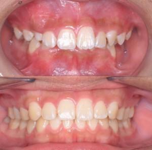 つくば研究学園矯正歯科クリニック case6