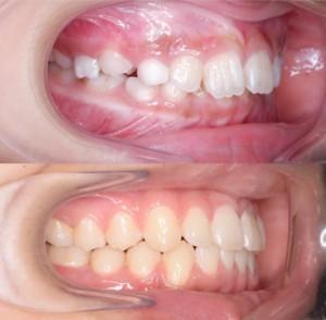 つくば研究学園矯正歯科クリニック case1