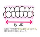反対咬合 つくば研究学園矯正歯科クリニック