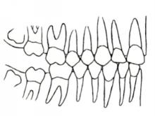 矯正治療例11歳ごろ つくば研究学園矯正歯科クリニック
