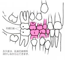 矯正治療例6歳~9歳頃 つくば研究学園矯正歯科クリニック