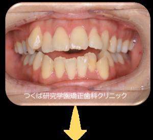つくば研究学園矯正歯科クリニック